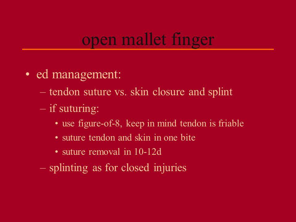 open mallet finger ed management: