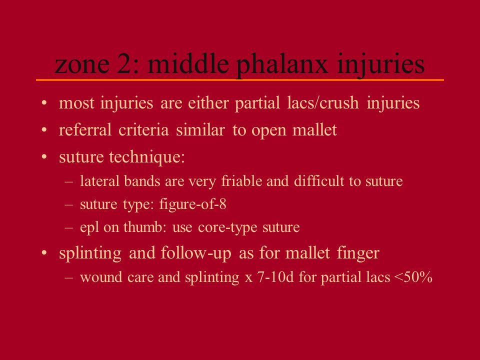 zone 2: middle phalanx injuries