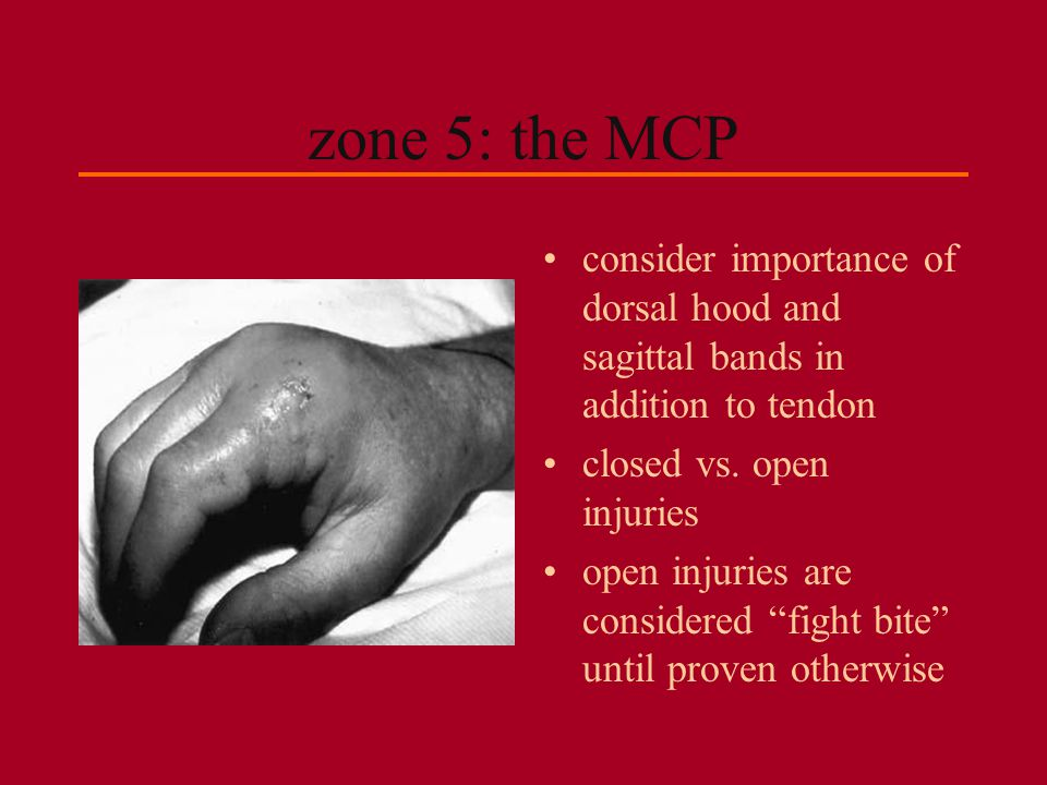 zone 5: the MCP consider importance of dorsal hood and sagittal bands in addition to tendon. closed vs. open injuries.