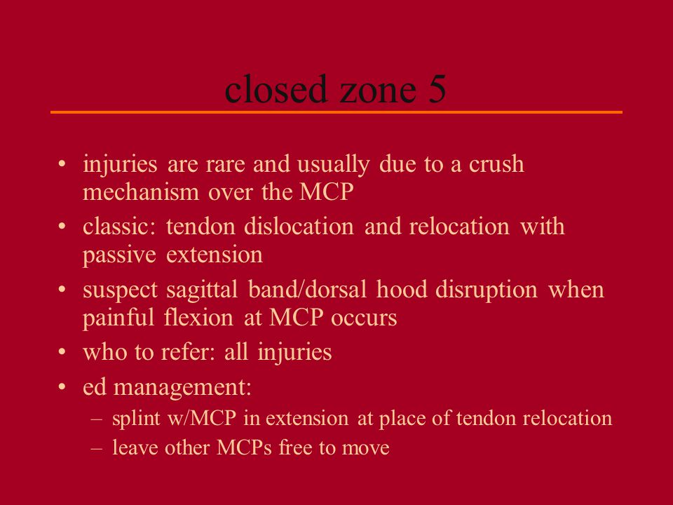 closed zone 5 injuries are rare and usually due to a crush mechanism over the MCP. classic: tendon dislocation and relocation with passive extension.