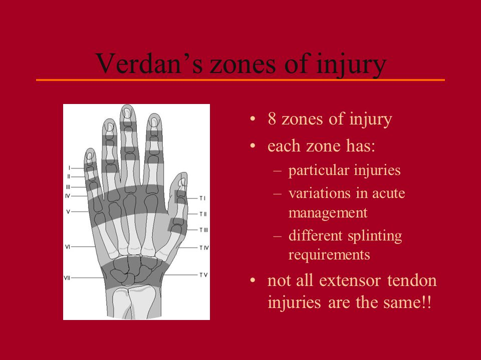 Verdan's zones of injury