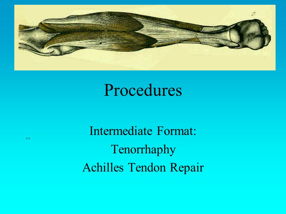 Intermediate Format: Tenorrhaphy Achilles Tendon Repair