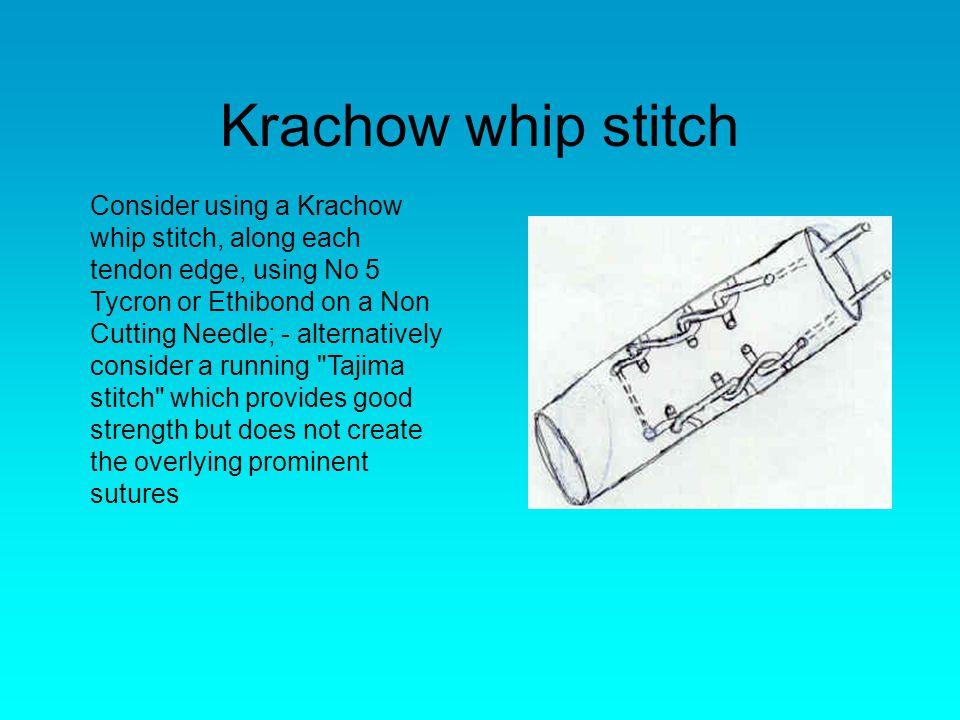Krachow whip stitch