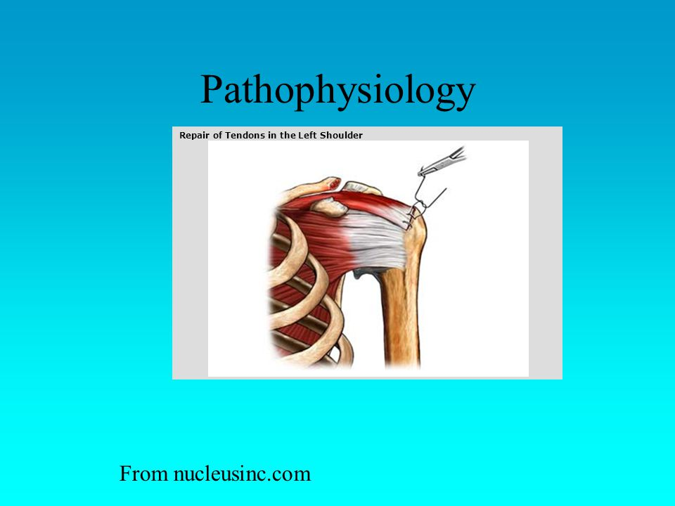 Pathophysiology From nucleusinc.com Extensor tendon (thumb)