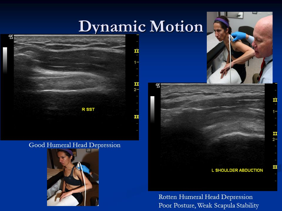Dynamic Motion Good Humeral Head Depression