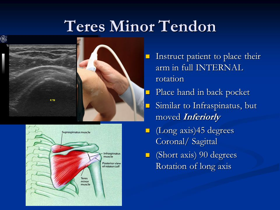 Teres Minor Tendon Instruct patient to place their arm in full INTERNAL rotation. Place hand in back pocket.