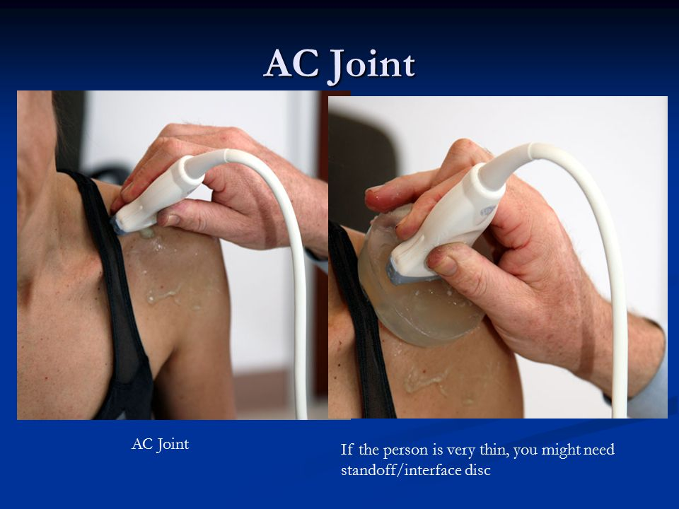 AC Joint AC Joint If the person is very thin, you might need standoff/interface disc