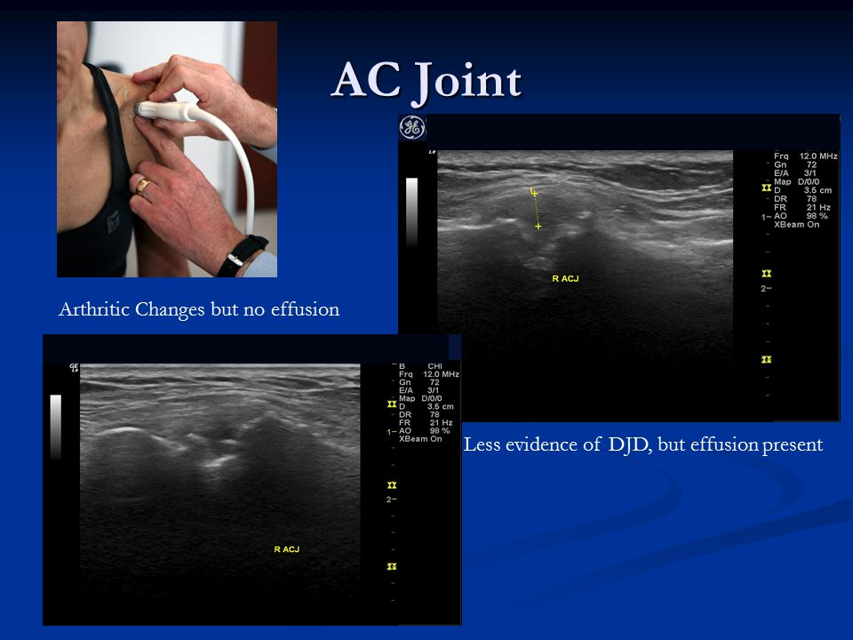 AC Joint Arthritic Changes but no effusion