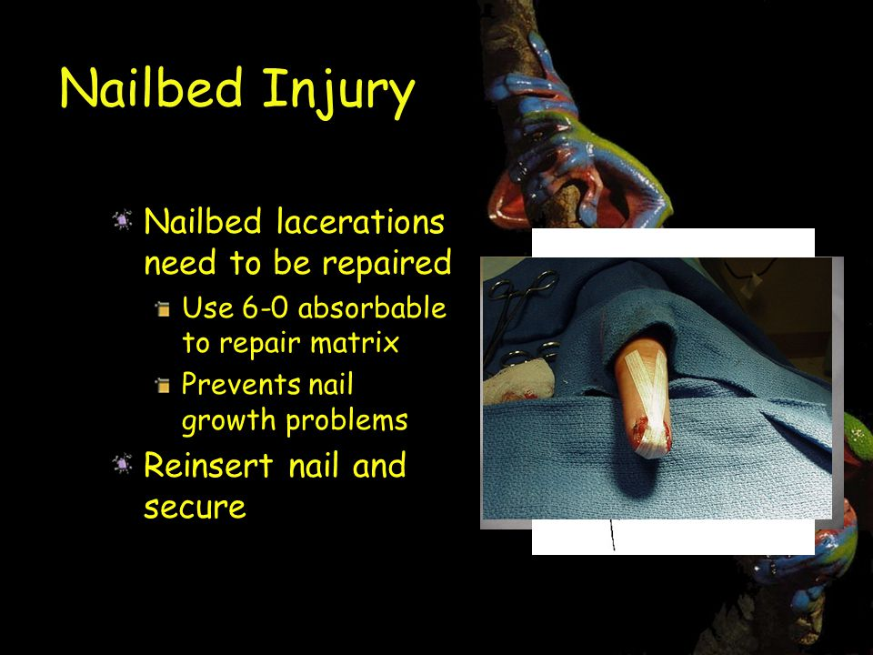 Nailbed Injury Nailbed lacerations need to be repaired