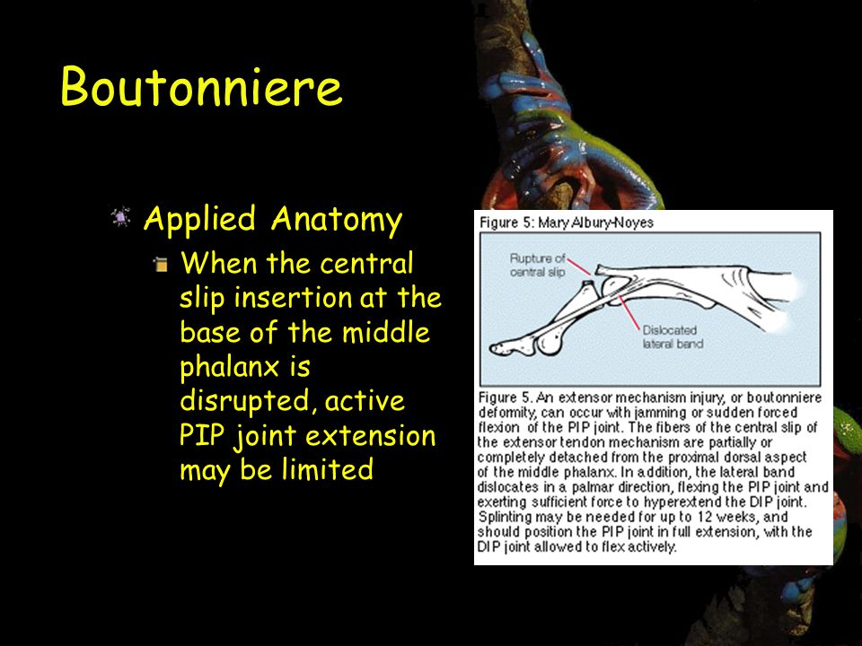 Boutonniere Applied Anatomy