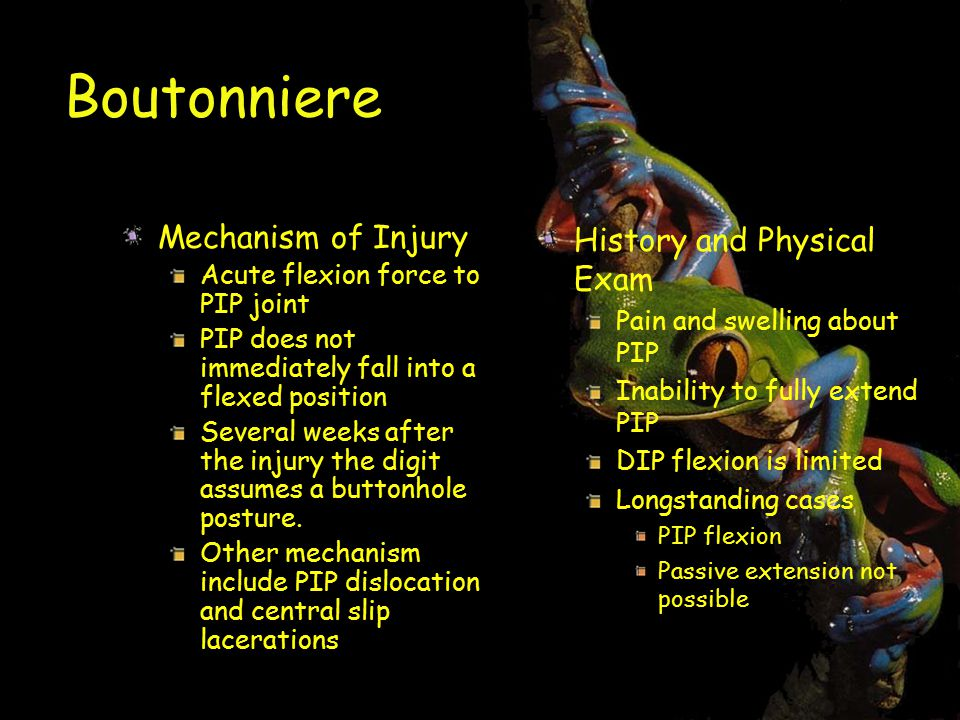 Boutonniere Mechanism of Injury History and Physical Exam