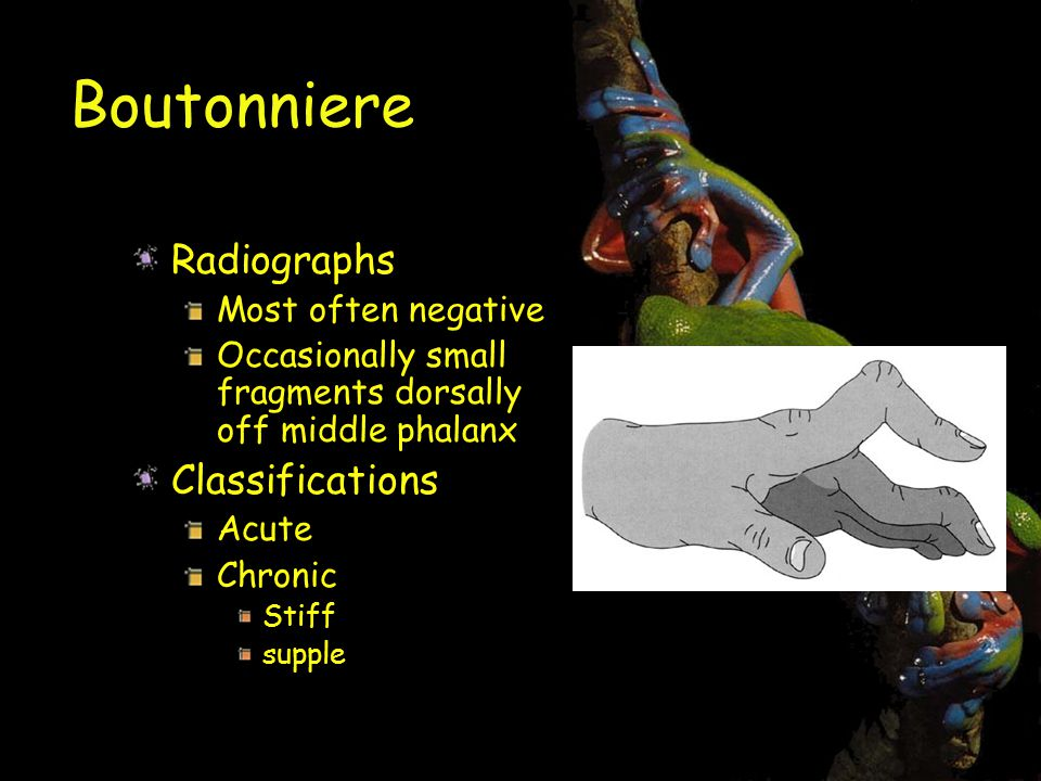 Boutonniere Radiographs Classifications Most often negative
