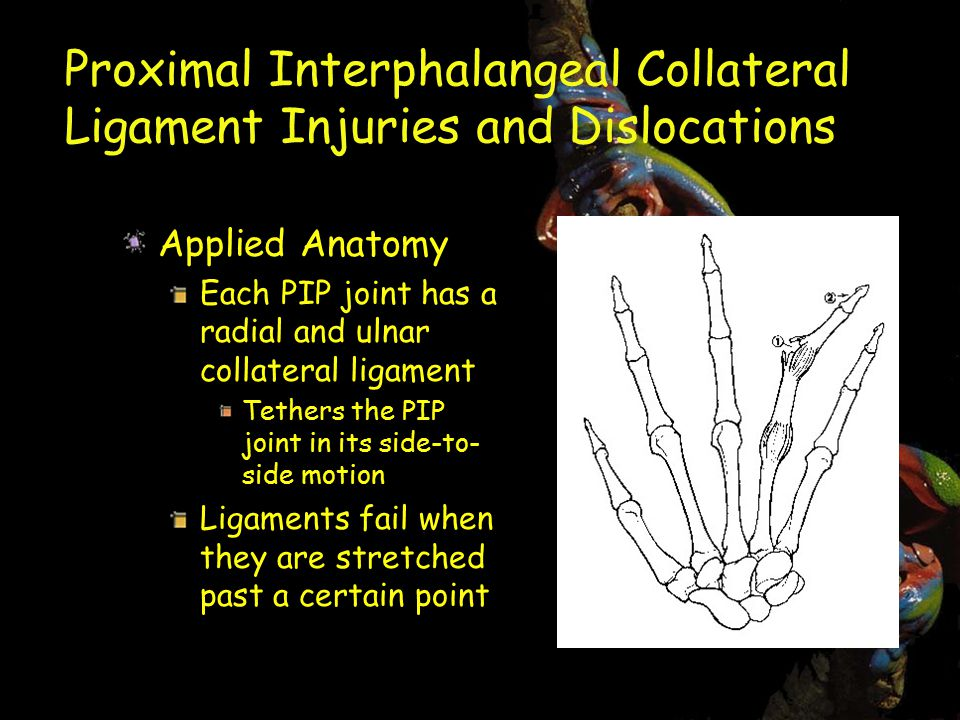 Proximal Interphalangeal Collateral Ligament Injuries and Dislocations