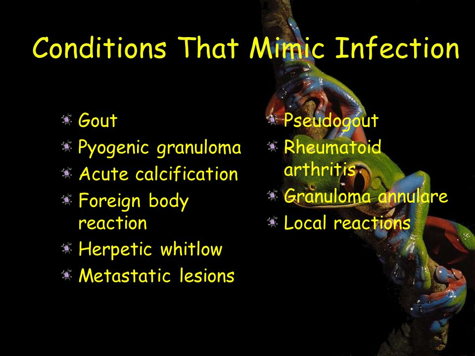 Conditions That Mimic Infection