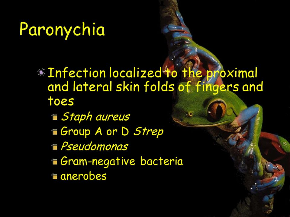 Paronychia Infection localized to the proximal and lateral skin folds of fingers and toes. Staph aureus.