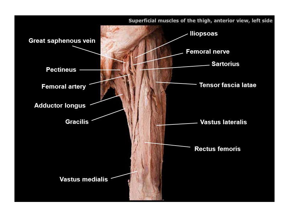 Iliopsoas Great saphenous vein. Femoral nerve. Sartorius. Pectineus. Femoral artery. Tensor fascia latae.