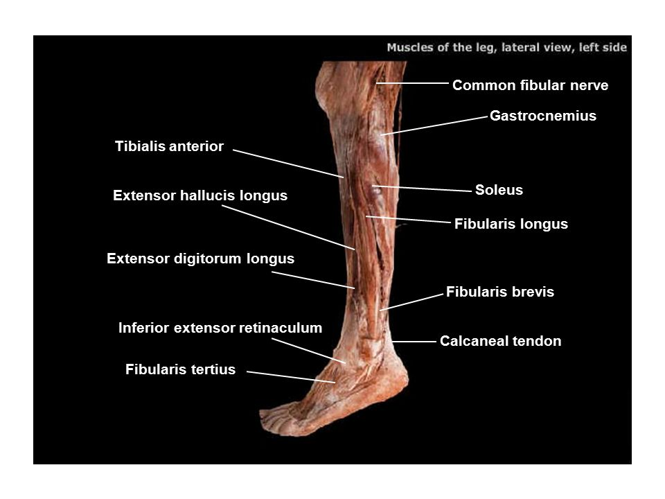 Common fibular nerve Gastrocnemius. Tibialis anterior. Soleus. Extensor hallucis longus. Fibularis longus.