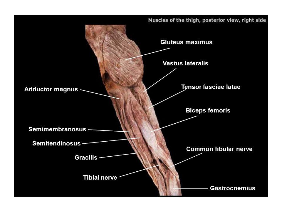Gluteus maximus Vastus lateralis. Tensor fasciae latae. Adductor magnus. Biceps femoris. Semimembranosus.