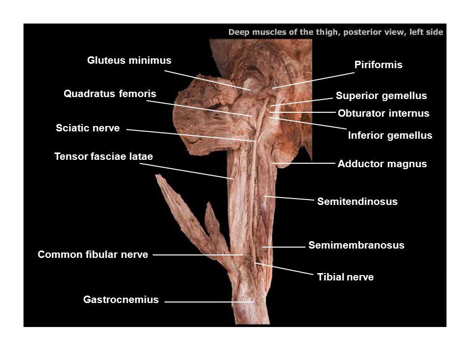 Gluteus minimus Piriformis. Quadratus femoris. Superior gemellus. Obturator internus. Sciatic nerve.