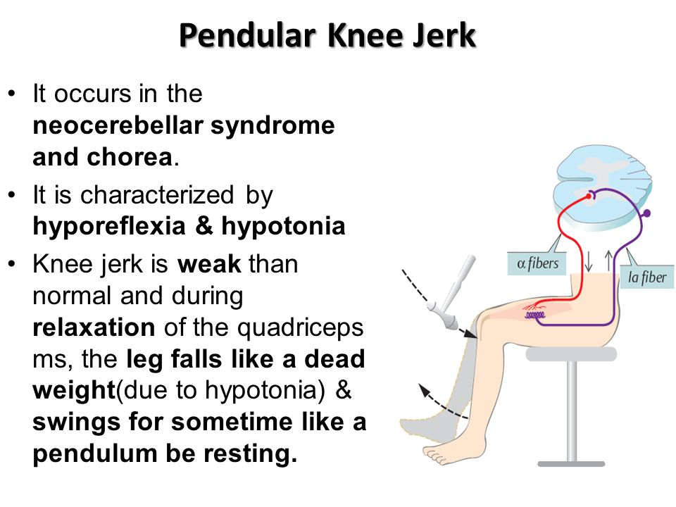 Pendular Knee Jerk It occurs in the neocerebellar syndrome and chorea.