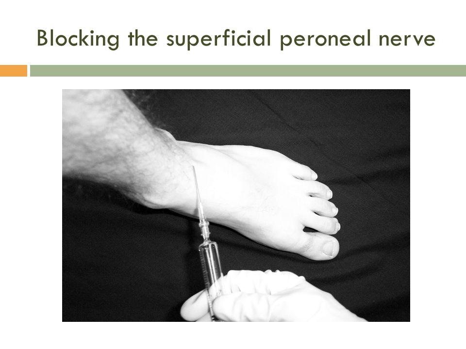 Blocking the superficial peroneal nerve