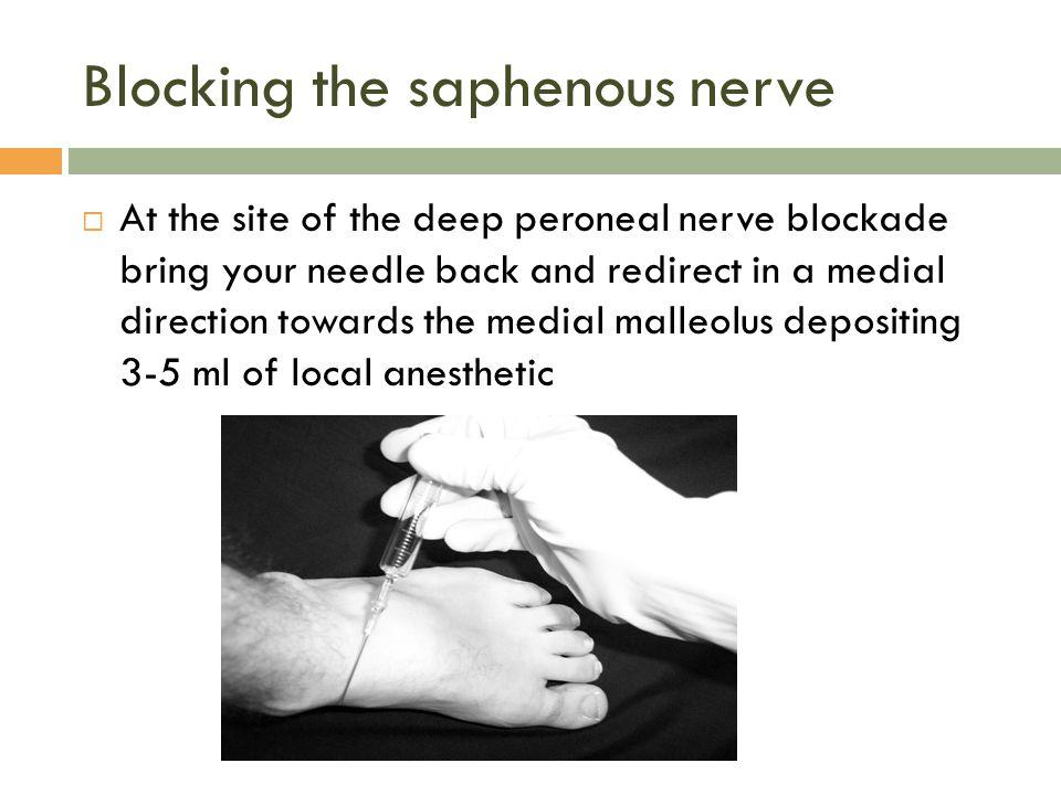 Blocking the saphenous nerve