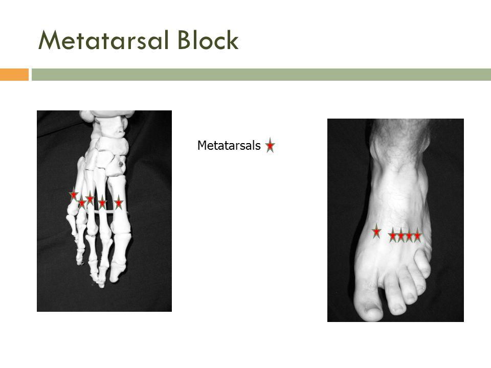 Metatarsal Block Metatarsals