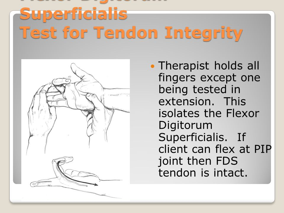 Flexor Digitorum Superficialis Test for Tendon Integrity