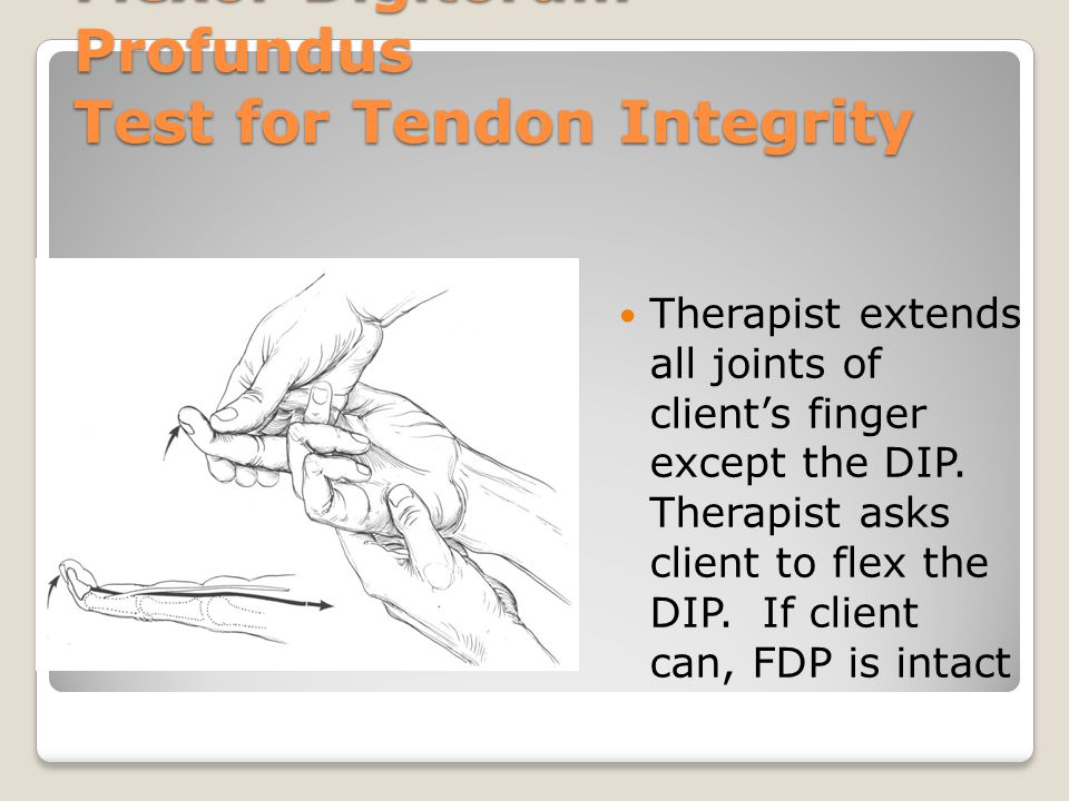 Flexor Digitorum Profundus Test for Tendon Integrity