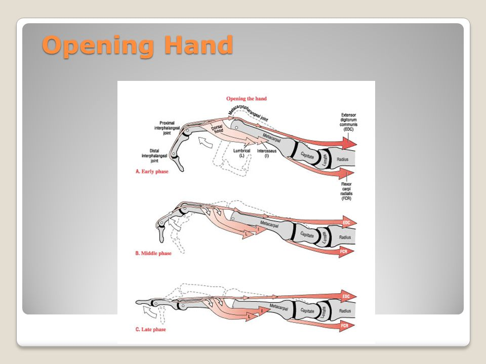 Opening Hand Early – extensor digitorum is extending at MCP joint