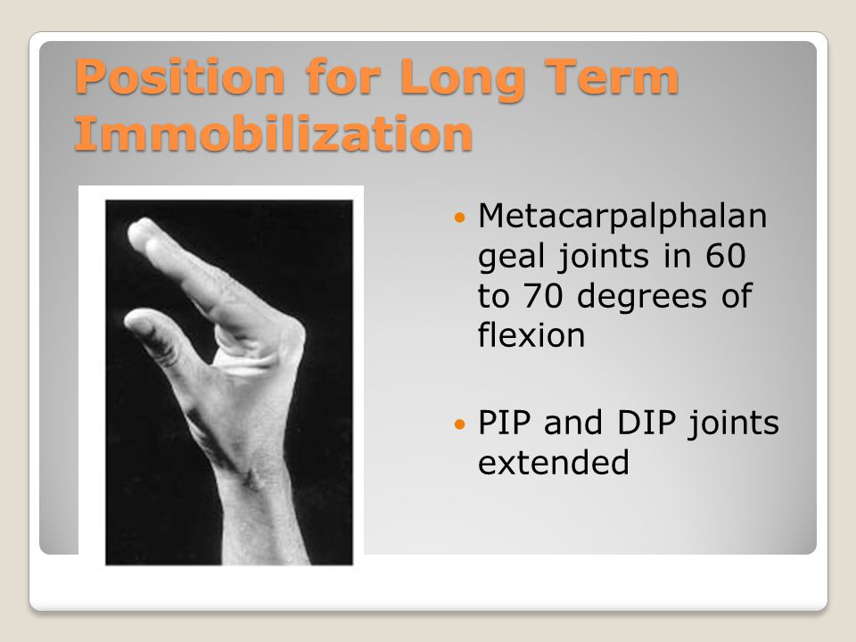 Position for Long Term Immobilization