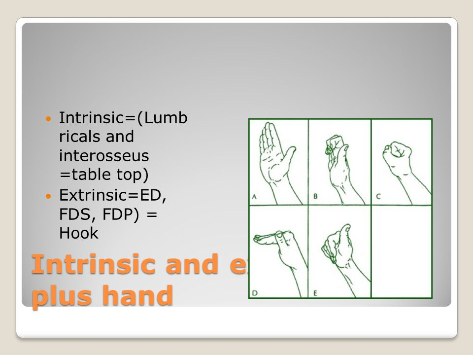 Intrinsic and extrinsic plus hand