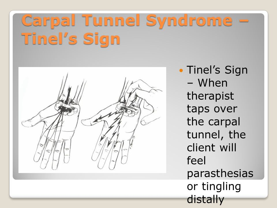 Carpal Tunnel Syndrome – Tinel's Sign