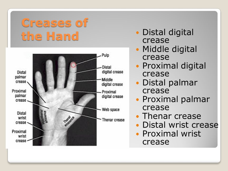 Creases of the Hand Distal digital crease Middle digital crease