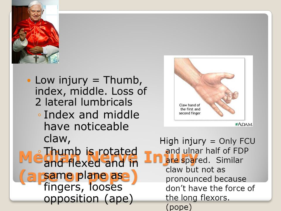 Median Nerve Injury (ape or pope)