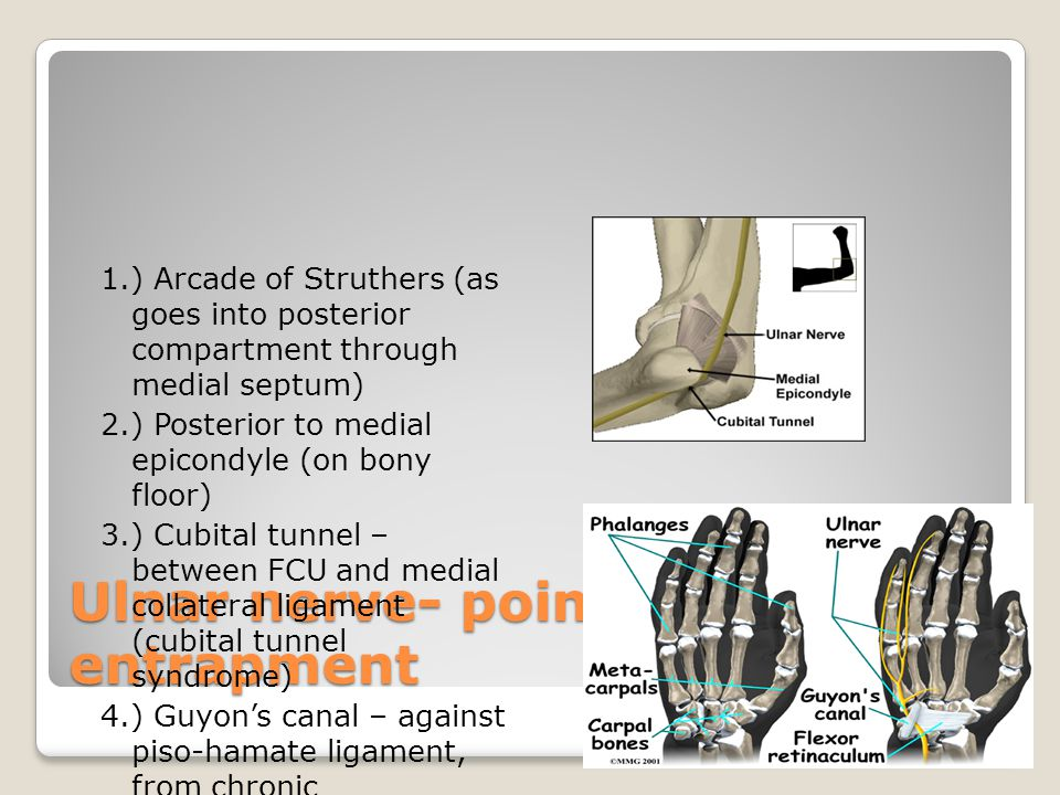 Ulnar nerve- points of entrapment