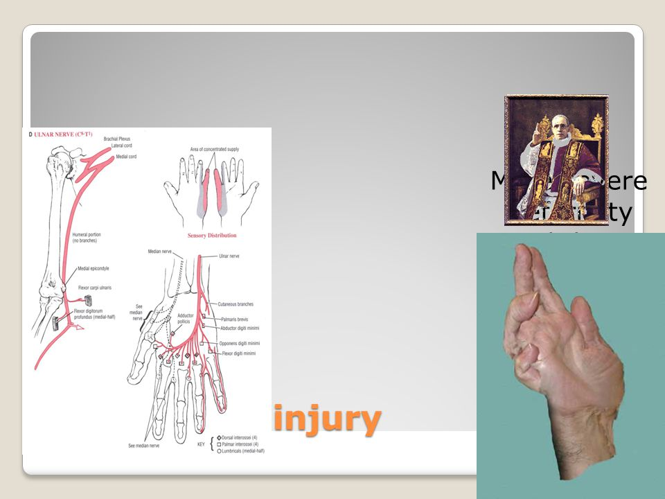 Ulnar nerve injury More severe deformity with low injury