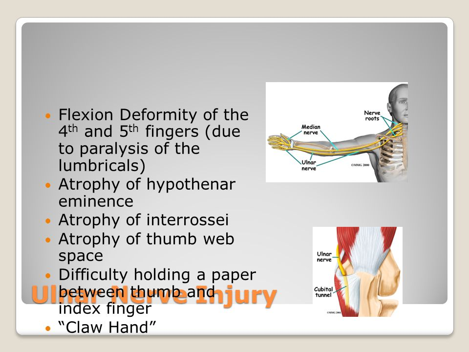 Flexion Deformity of the 4th and 5th fingers (due to paralysis of the lumbricals)