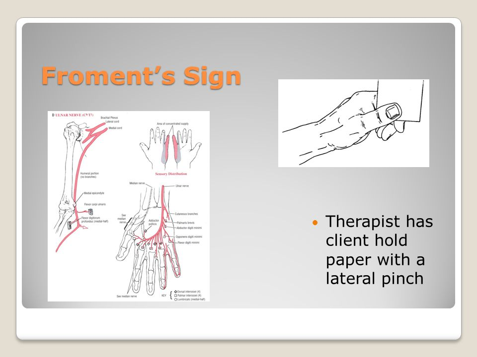 Froment's Sign Therapist has client hold paper with a lateral pinch