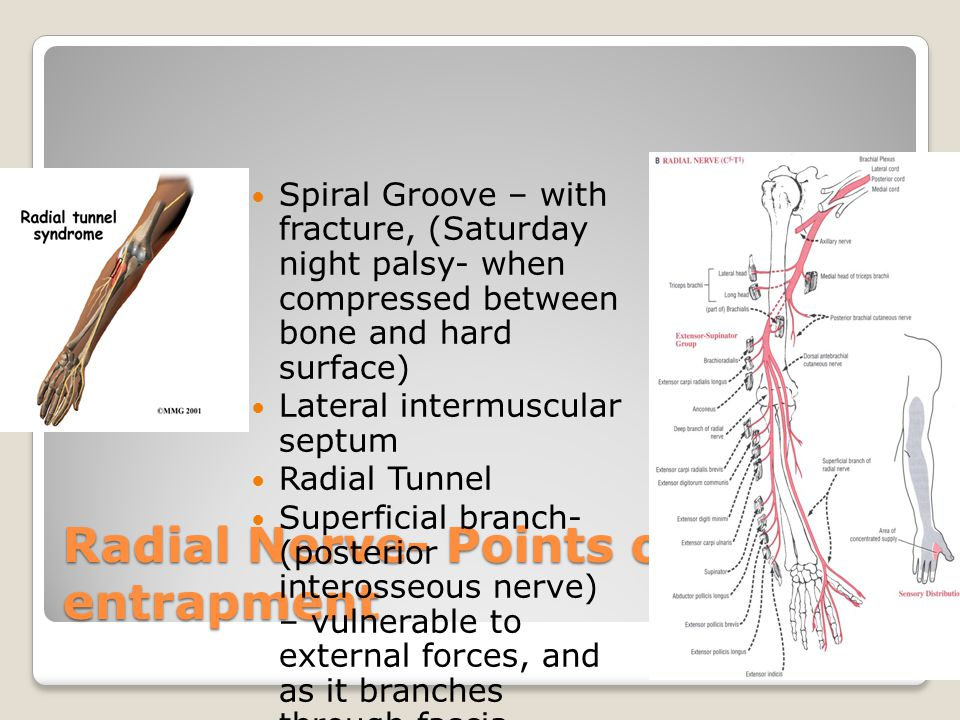 Radial Nerve- Points of entrapment