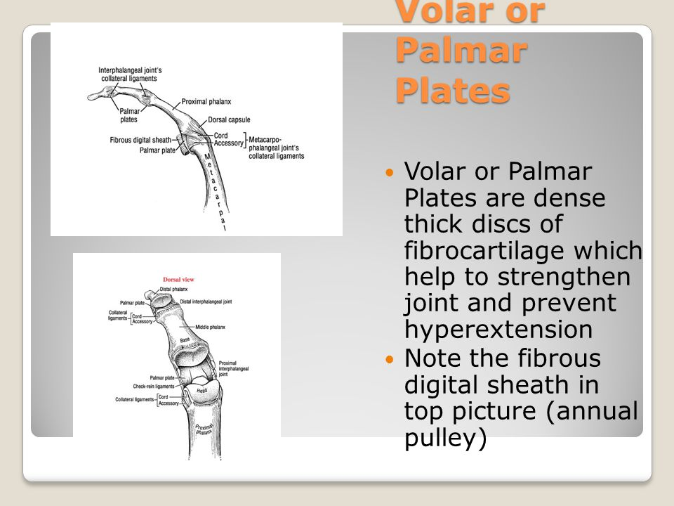 Volar or Palmar Plates Volar or Palmar Plates are dense thick discs of fibrocartilage which help to strengthen joint and prevent hyperextension.