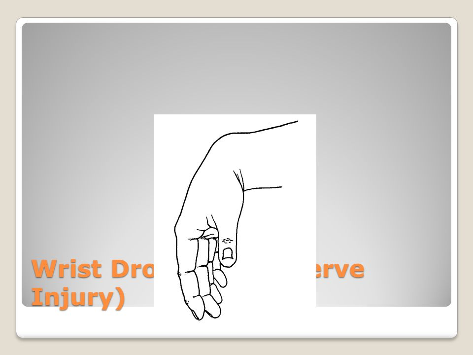 Wrist Drop (Radial Nerve Injury)