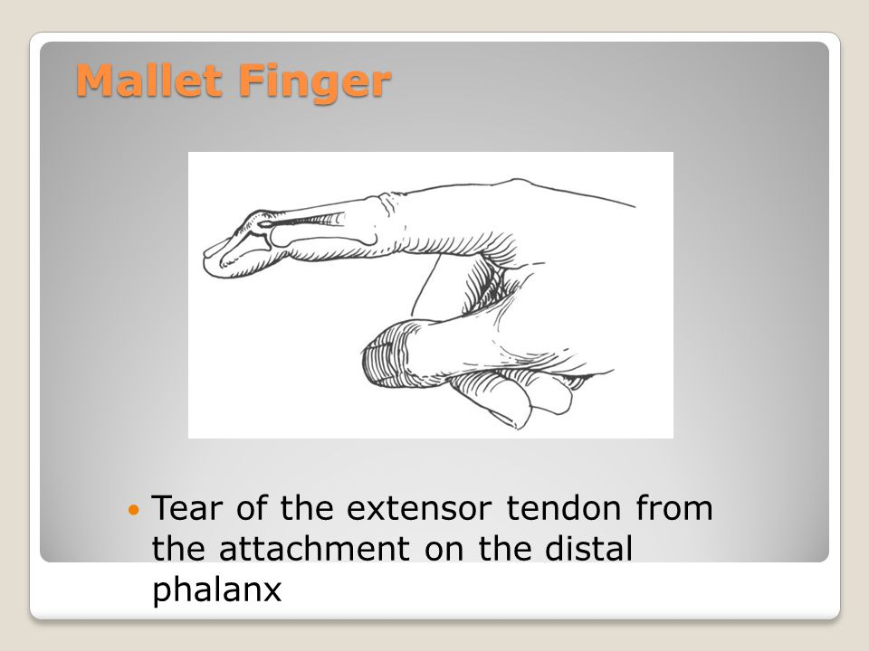 Mallet Finger Mallet Finger - Tear of the extensor tendon from the attachment on the distal phalanx.