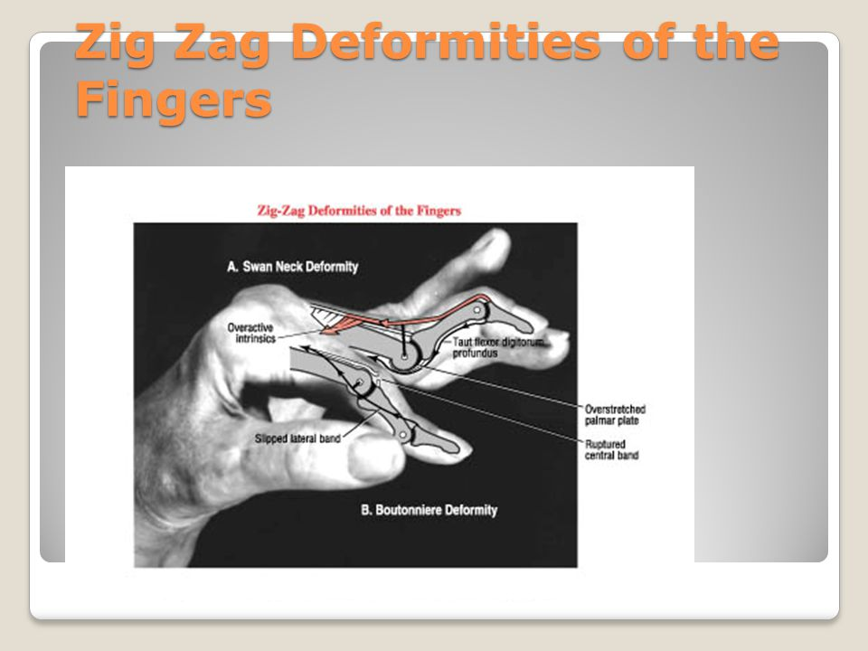 Zig Zag Deformities of the Fingers