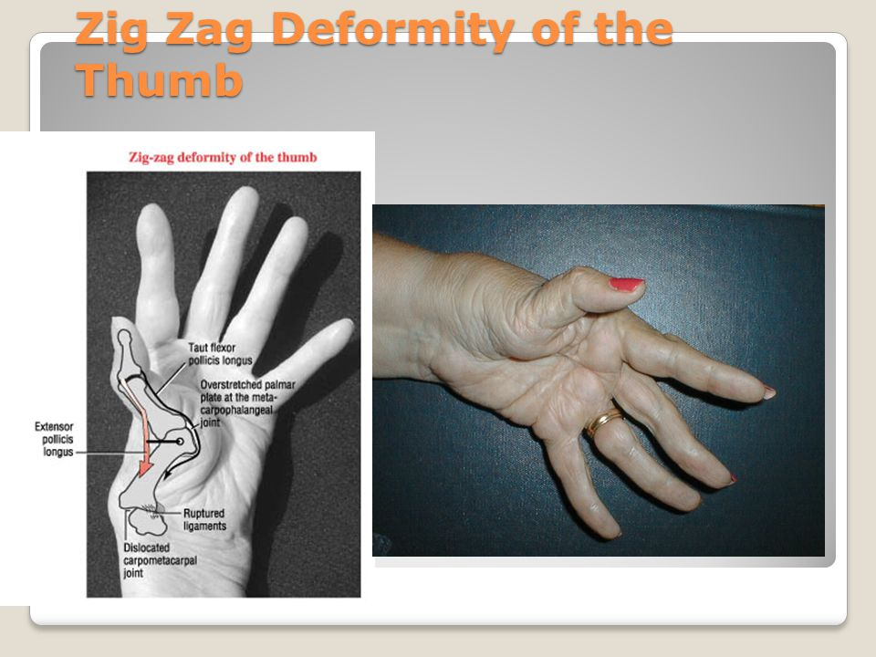 Zig Zag Deformity of the Thumb