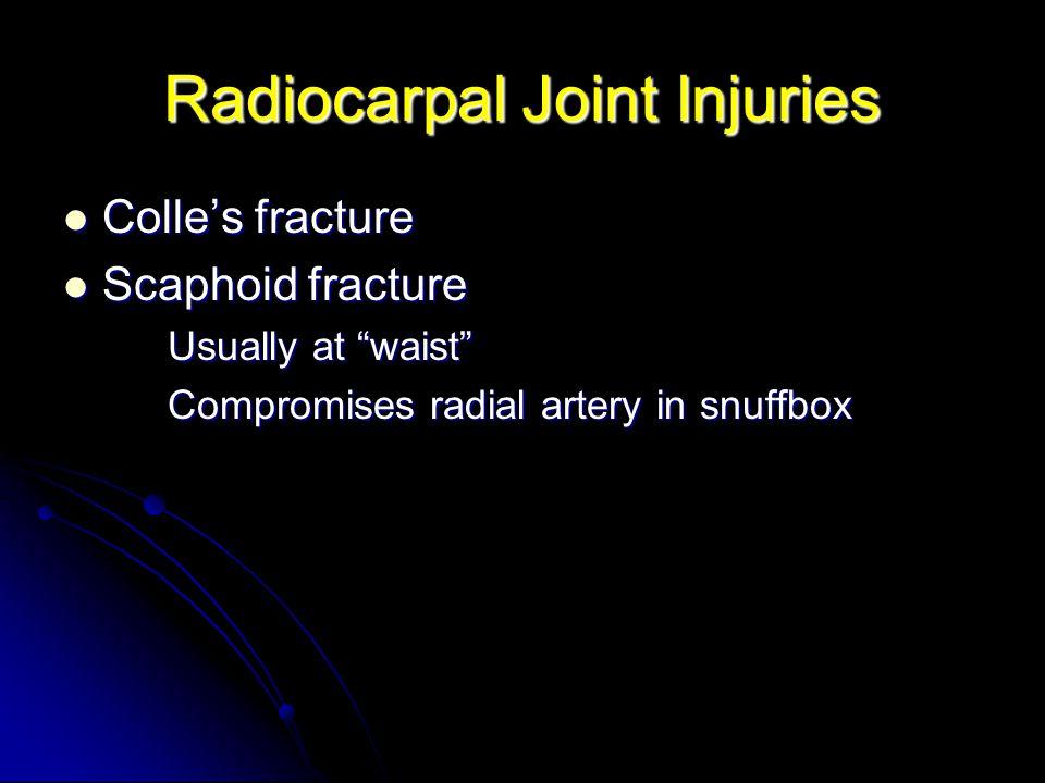 Radiocarpal Joint Injuries