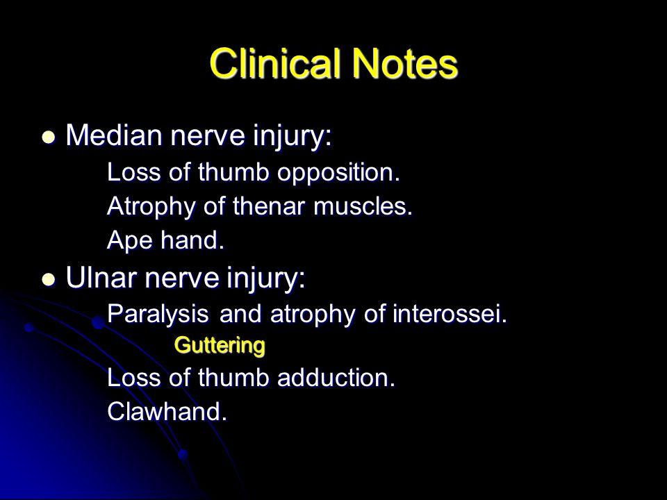 Clinical Notes Median nerve injury: Ulnar nerve injury: