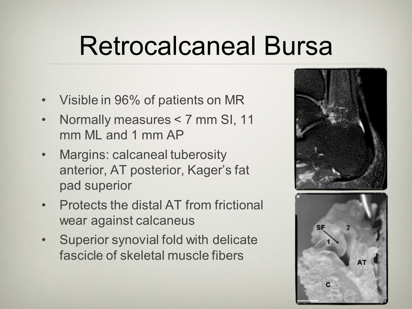 Retrocalcaneal Bursa Visible in 96% of patients on MR