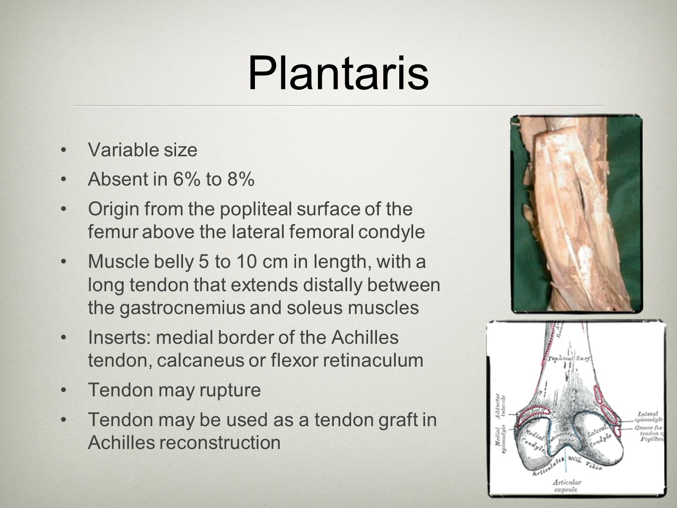 Plantaris Variable size Absent in 6% to 8%