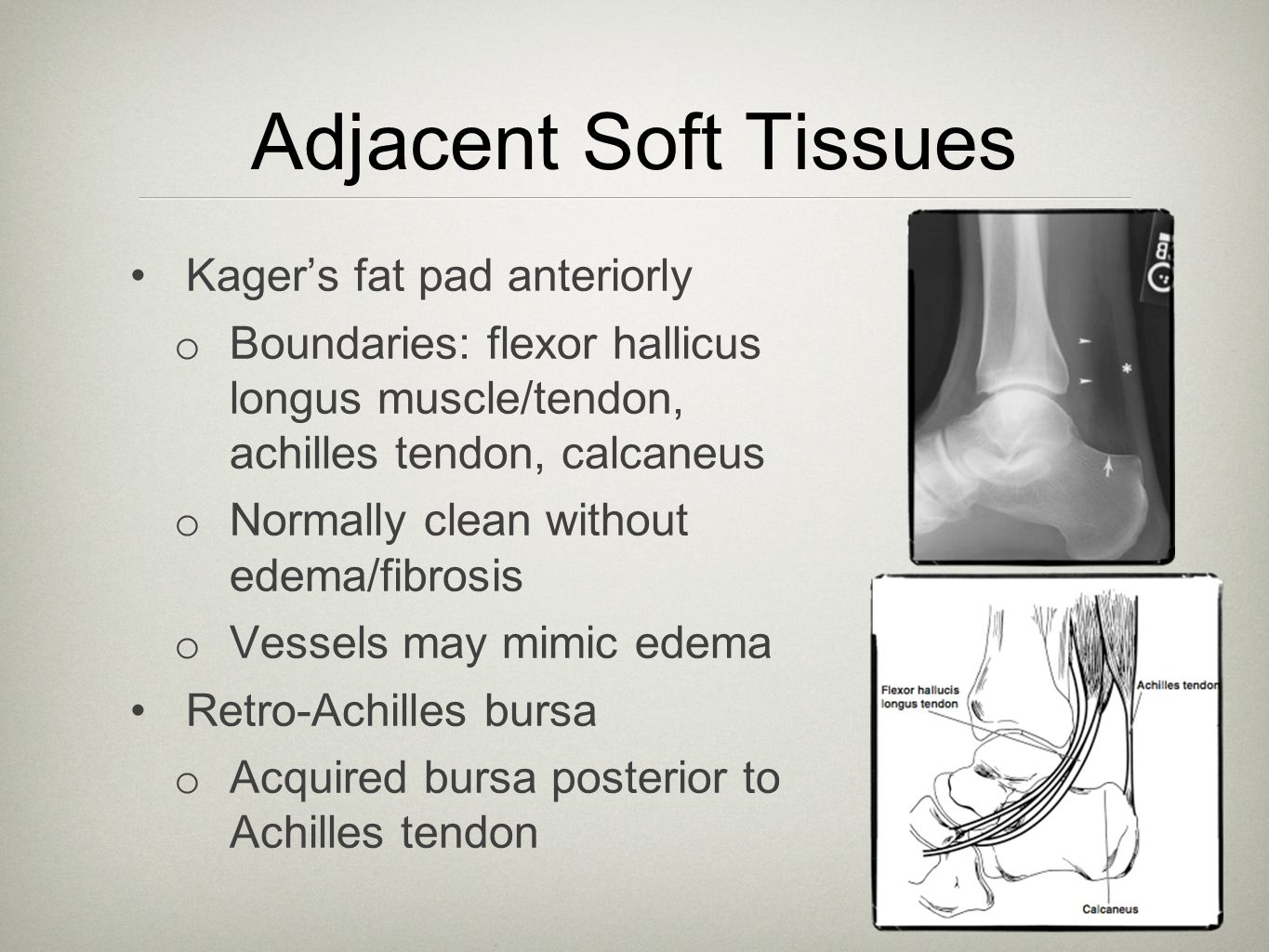 Adjacent Soft Tissues Kager's fat pad anteriorly